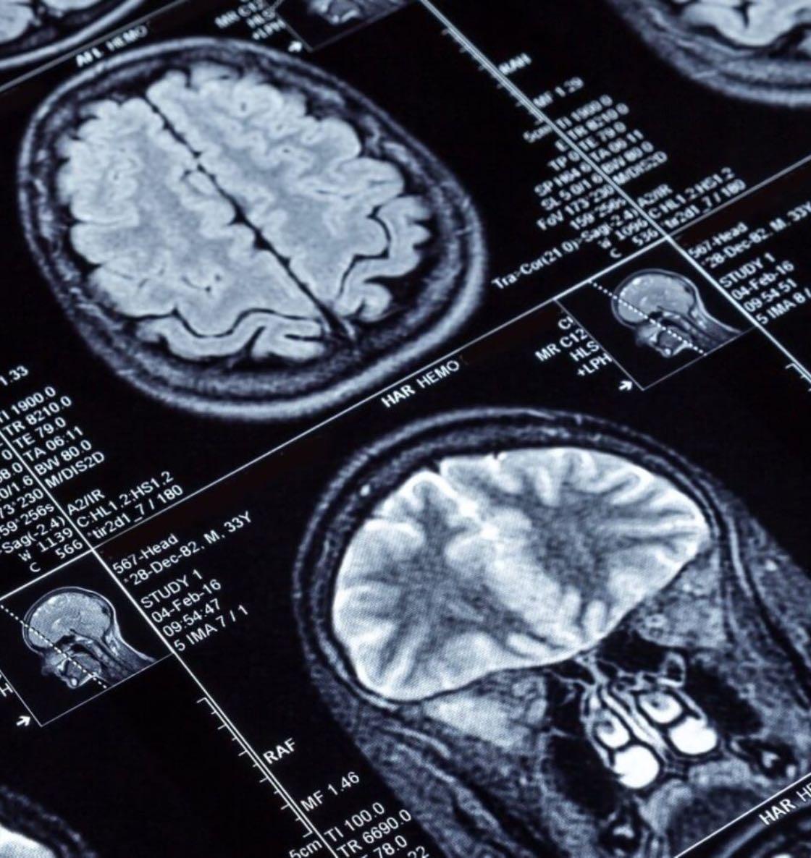 medical websites neurology